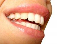 implanty zębowe i ładny uśmiech